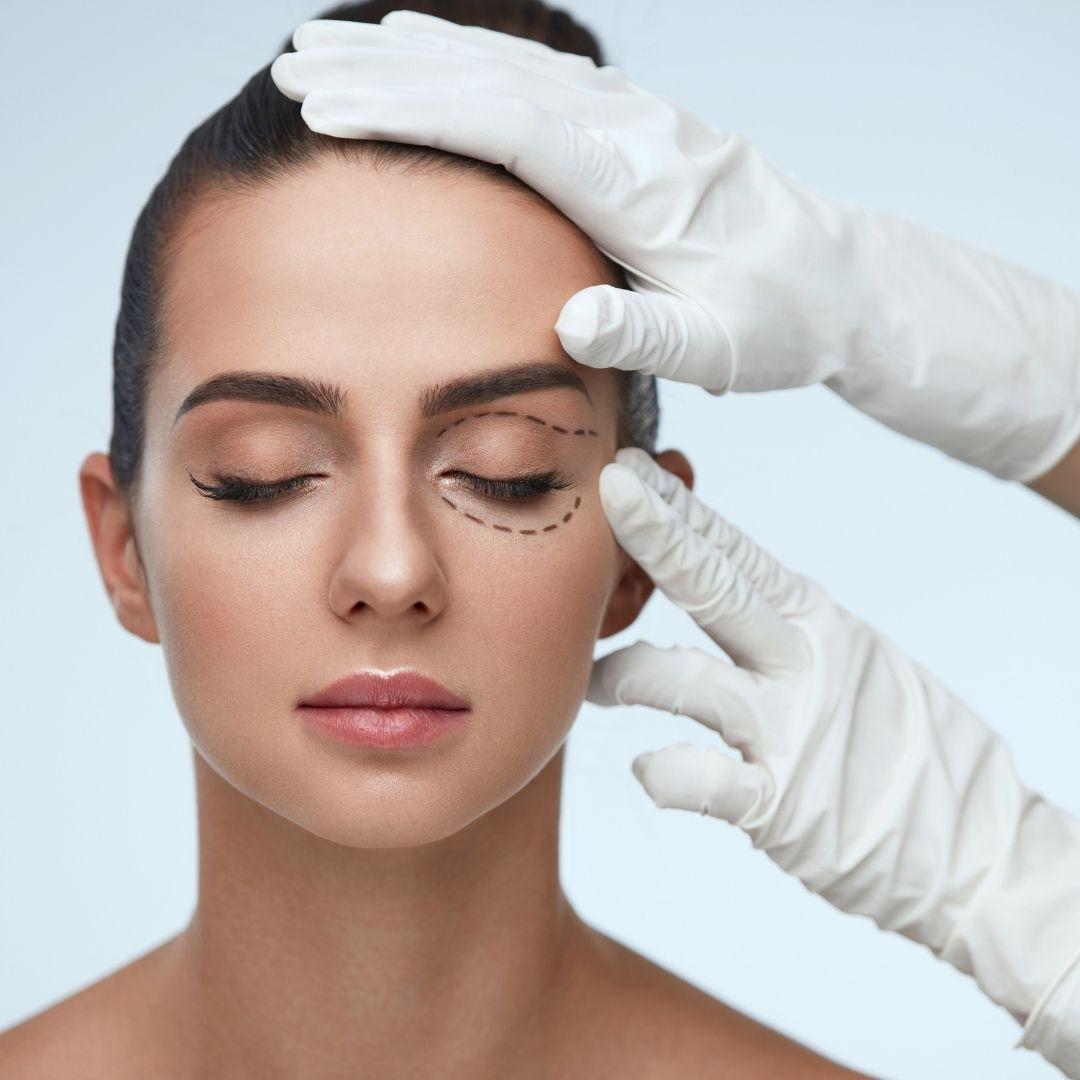 Estetické operace očních víček